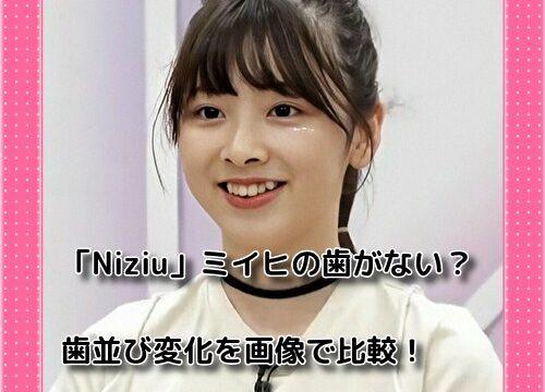 「Niziu」ミイヒの歯がない?歯並び変化を画像で比較!痩せた原因にも関係している?