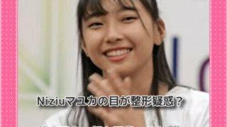 Niziuマユカの目が整形疑惑?昔と現在の顔を画像で比較!